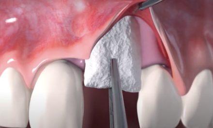 3D-Animation einer Weichgewebeaugmentation