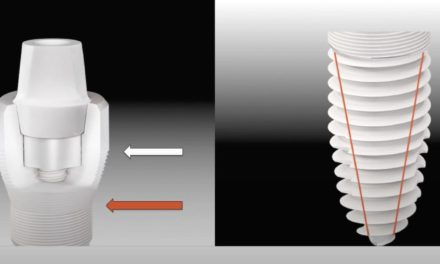 Keramikimplantate: Biologische Zahnheilkunde