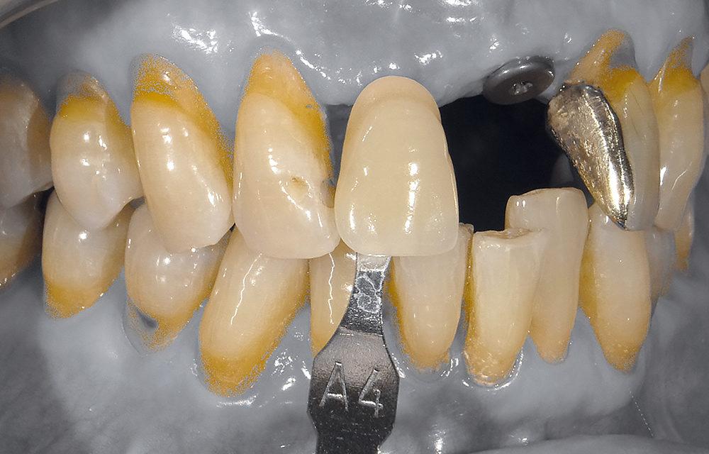 Implantation im parodontal kompromittierten Gebiss