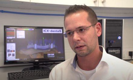 ICX-ROYAL – die neue Königsdisziplin in der Zahntechnik – live erlebt!