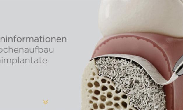 Neue Patientenkommunikation zum Knochenaufbau