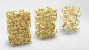 Implantate bei Osteoporose?