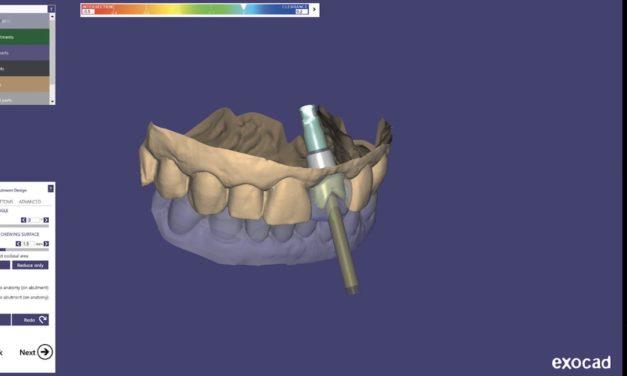 exocad ChairsideCAD: Nun auch Titan-Abutments und verschraubte Kronen auf vhf-Maschinen