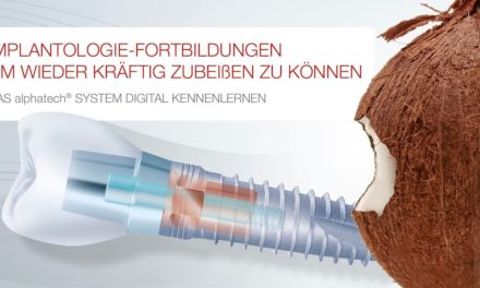 alphatech guided surgery: Implantologischer Online-Informationsaustausch