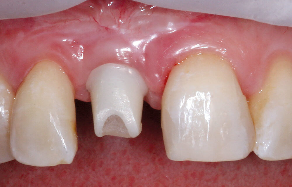 Vollkeramische Implantate