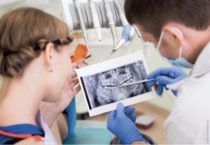 Aufklärung über Behandlungsalternativen – Implantate als weitere Stützpfeiler