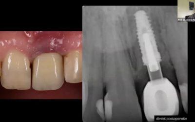Komplikationsprävention bei parodontologischen und oralchirurgischen Eingriffen – Teil 2
