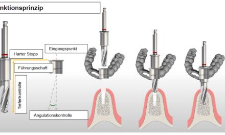 Das neue Implantatplanungssystem SKY pro guide