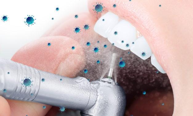 Winkelstück: Aerosole in Zahnarztpraxen reduzieren