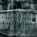 Versorgung des atrophen posterioren Oberkiefers mit kurzen Einzelimplantaten: 6,5mm vs. 7,5mm. Retrospektive Kohortenstudie.