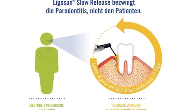 Parodontitis: Gezielte Wirkung ohne Belastung