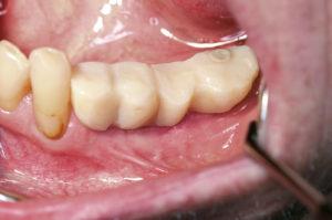 EPS – Strukturadaptiertes Präparationskonzept zur Optimierung der Implantatstabilität