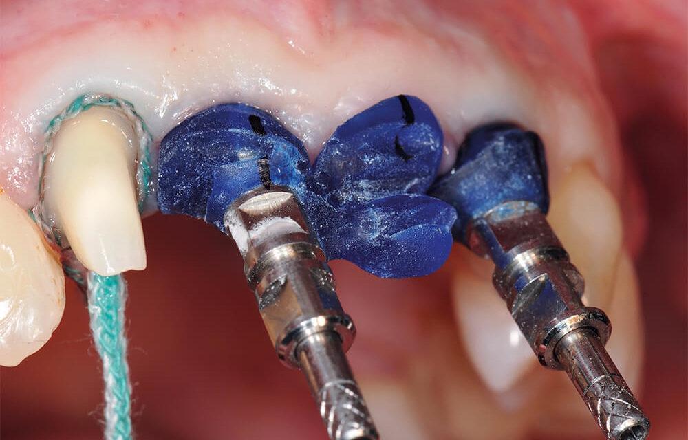 Die traumatisch beeinträchtigte Oberkieferfront-Zahnregion