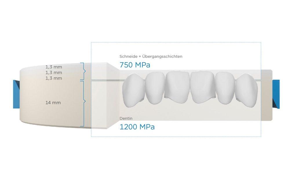 Cercon ht ML – bis zu 14-gliedrige Brücken mit der neuen Cercon Multilayer-Lösung von Dentsply Sirona
