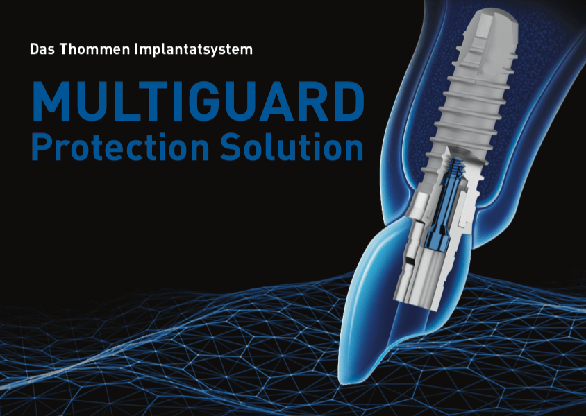 Das Thommen Implantatsystem MULTIGUARD Protection Solution