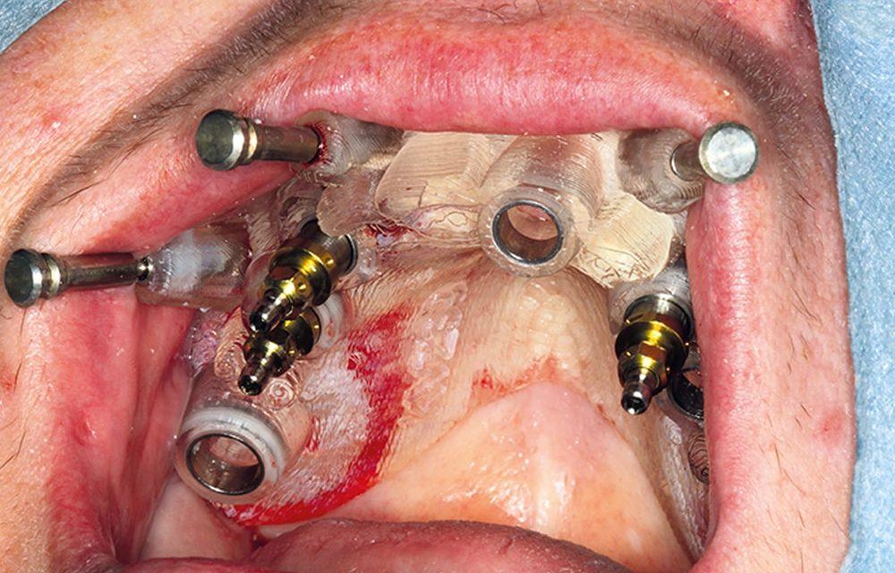 Funktionell-implantologische Vier-Quadranten-Rehabilitation