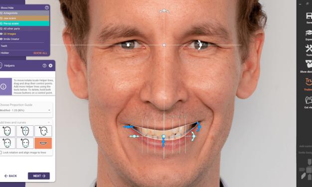 exocad gibt Roll-out von DentalCAD 3.0 Galway bekannt