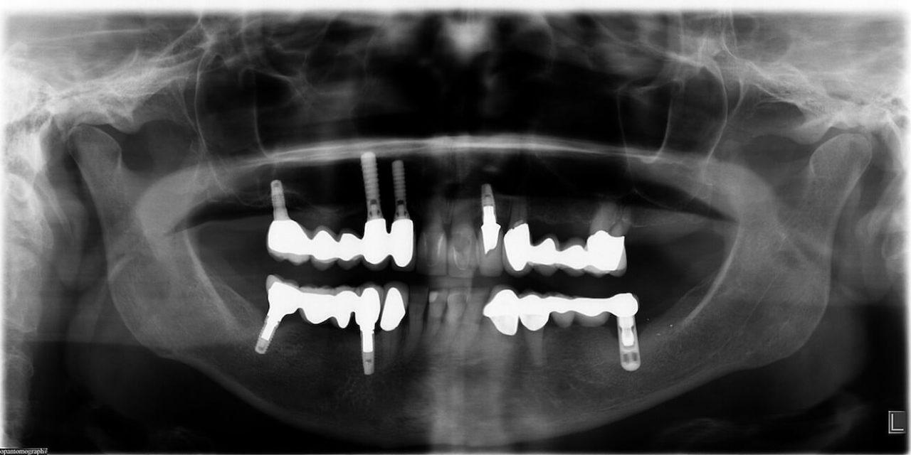Röntgenbild: Welches Implantatsystem ist das?