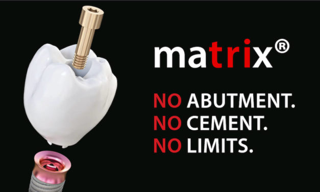 matrix – ein Implantatsystem stellt sich vor
