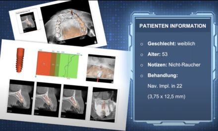 ICX-WEBINAR: Navigierte Implantologie – Eine Einführung in die Praxis