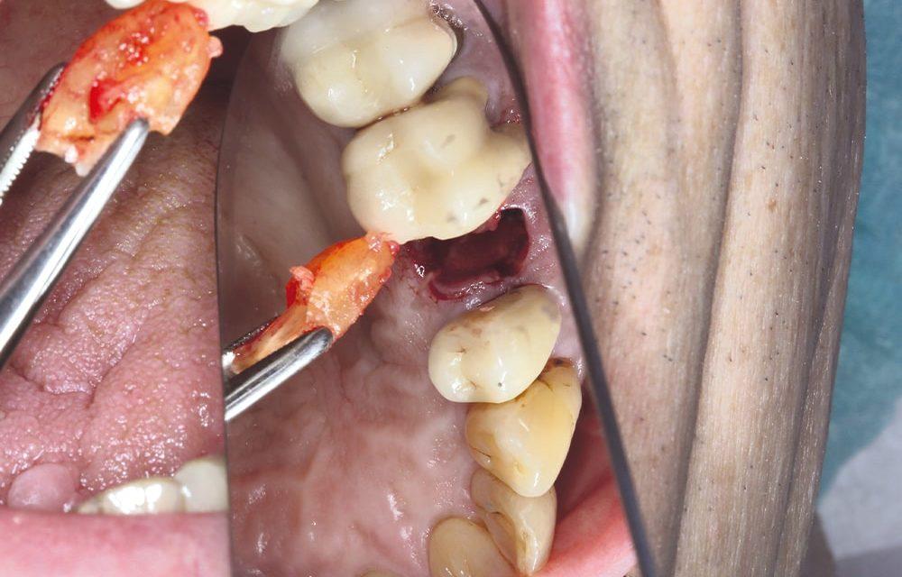 Sofortimplantation bei parodontal kompromittierter Ausgangssituation