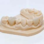 Isar Smile Crown – die Neuheit im 3D-Druck