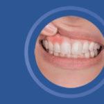 Nicht-chirurgische Parodontitis-Therapie in der Alltagspraxis & verlässliche Diagnostik der präklinischen Periimplantitis