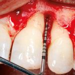 Regeneration von intraossären Defekten mit Hyaluronsäure