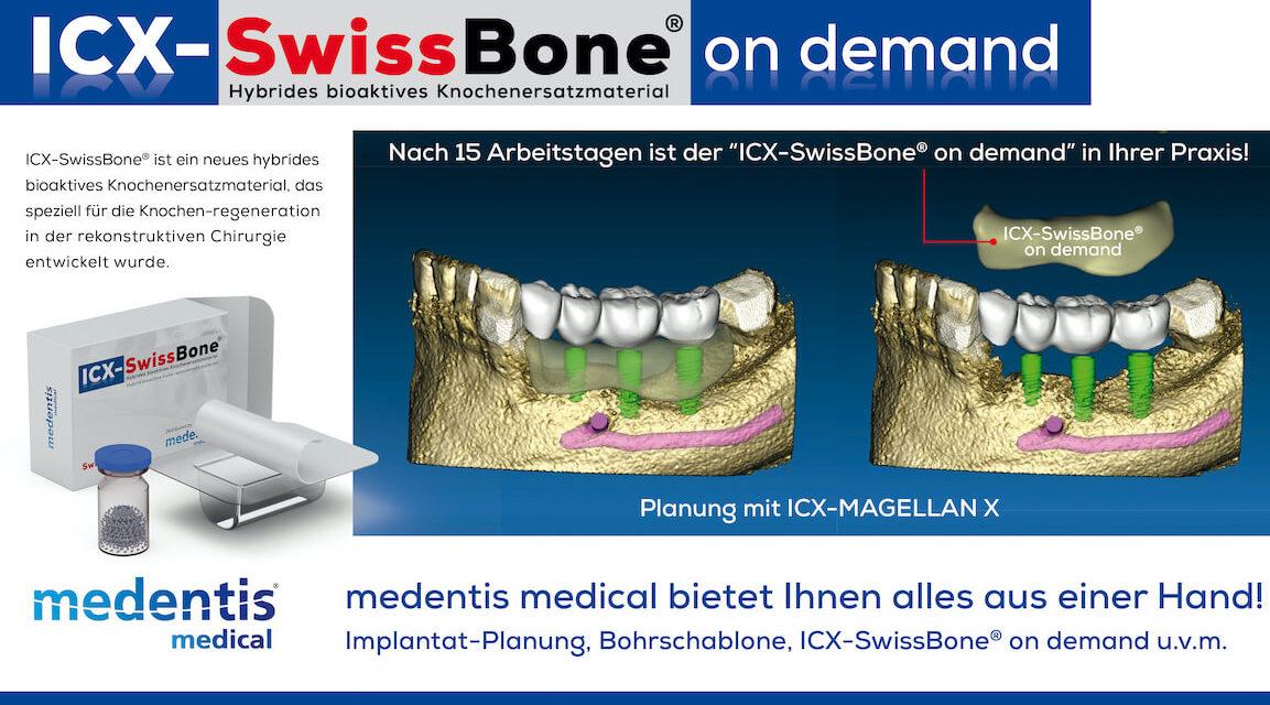 Hybrides bioaktives  Knochenersatzmaterial ICX-SwissBone