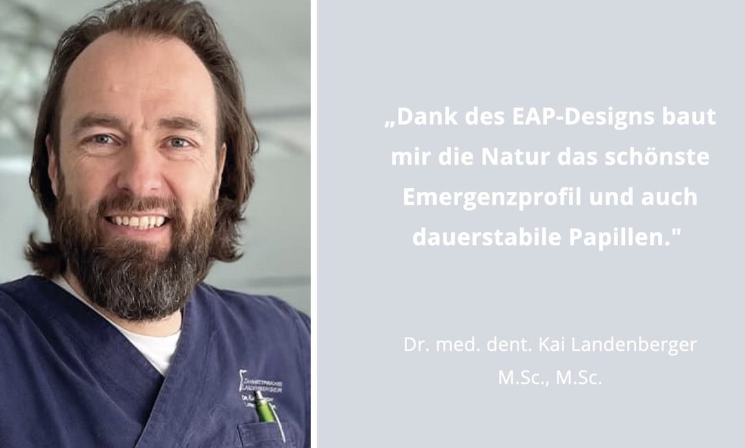 EAP: Enorme Steigerung an Effizienz und Ästhetik