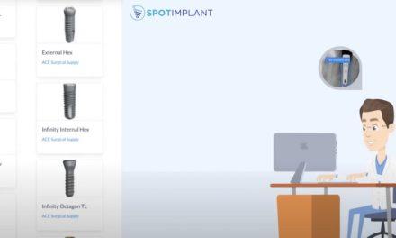 Spotimplant: Neue Suchmaschine für Zahnimplantate