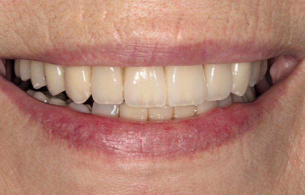 State-of-the-Art Totalrehabilitation mit zahn- bzw. implantatgetragenen Vollkeramikkronen