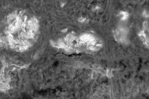 Minimal-invasives Vorgehen für den Ersatz schlecht positionierter Implantate bei Periimplantitis.