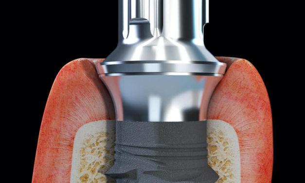 Tissue Level Implantate – next level