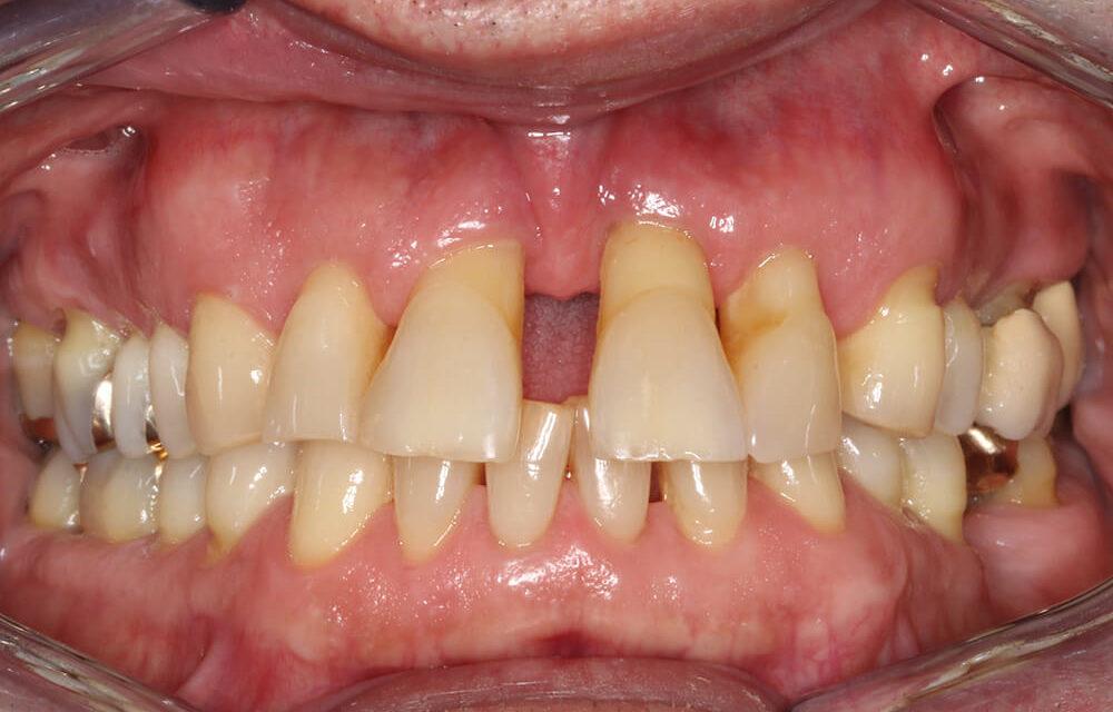 Ästhetische Rehabilitation einer parodontal nicht erhaltungsfähigen Oberkieferfront